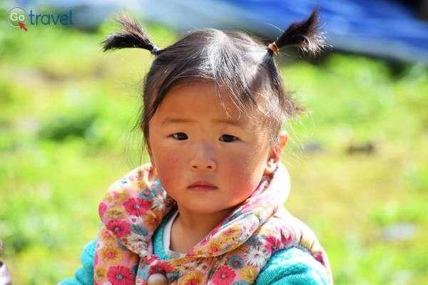ילדה מקומית עם לחיים צרובות קור  (צילום: כרמית וייס)